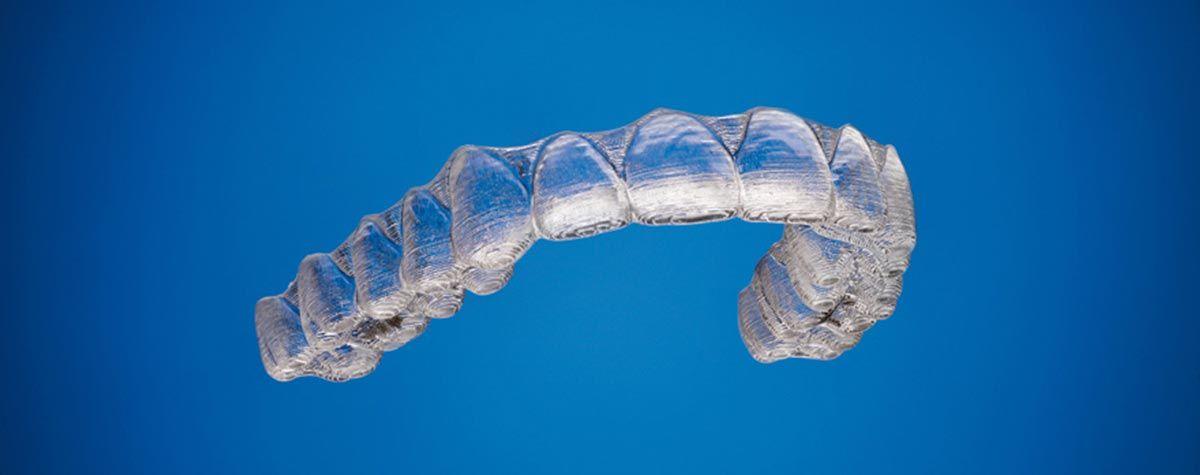 Invisalign: La ortodoncia del futuro