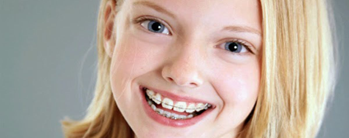 ¿A qué edad es recomendable usar ortodoncia?
