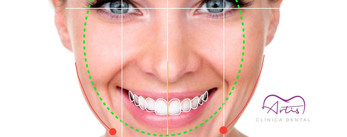 Diseño de Sonrisa Digital (DSD)