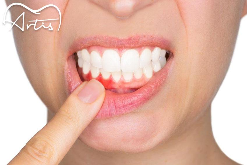 ¿Cómo podemos evitar el sangrado de encías, gingivitis?