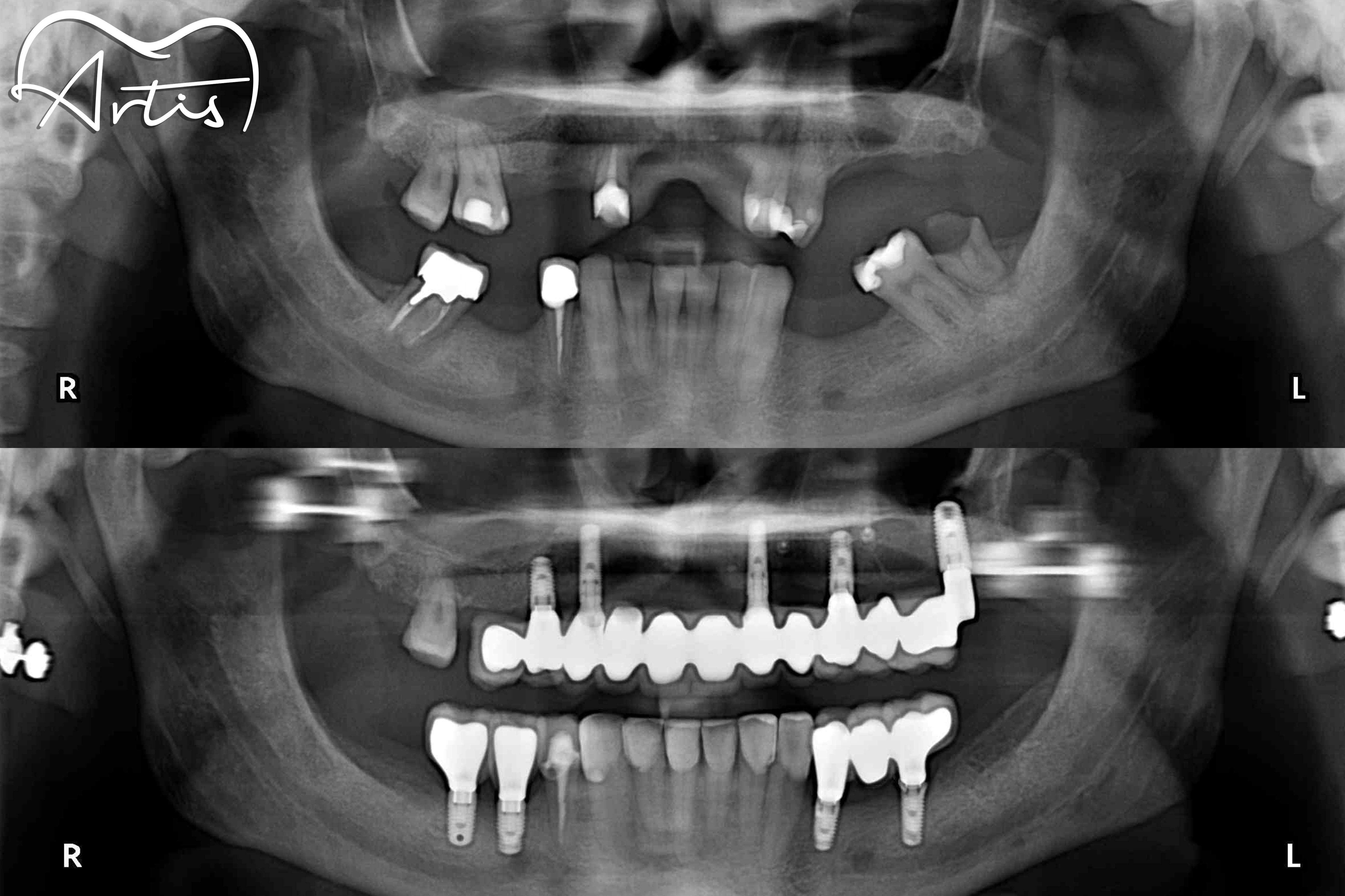 Cómo cuidar los implantes